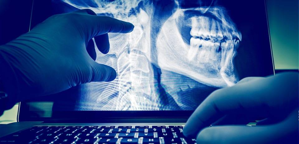 גלית מטצקית, השתלת שיניים ביום אחד